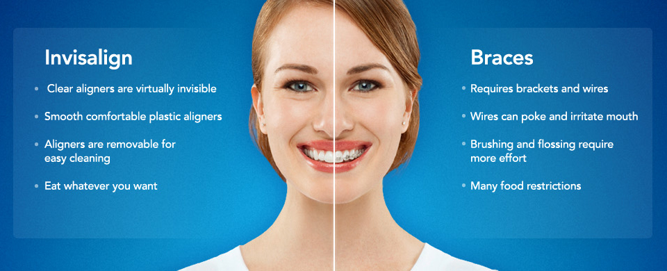INVISALIGN OVERVIEW