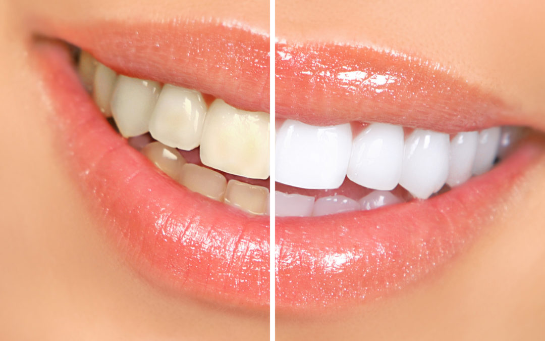 Zoom Whitening Procedure