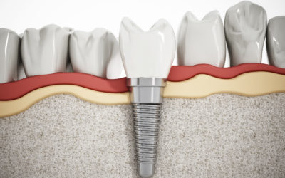 Basics of Dental Implant Surgery